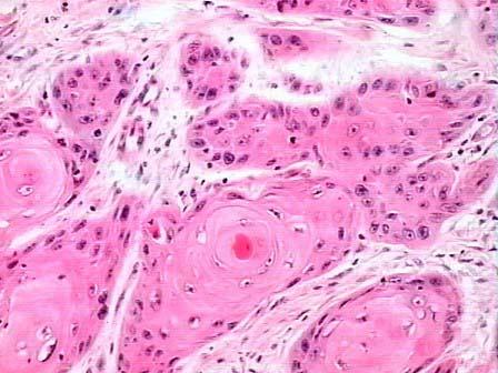 喉乳头状瘤